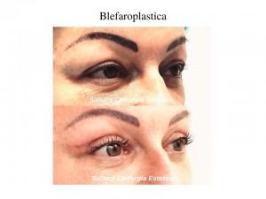 Blefaroplastica