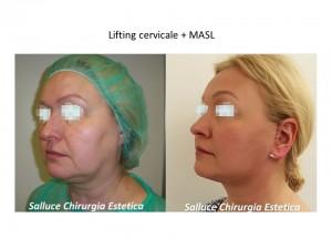 Lifitng cervicale - Masl