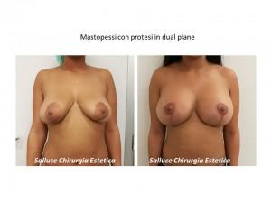 Mastopessi con protesi dual plane