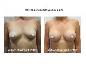 Mastoplastica additiva dual plane