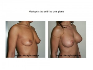 Protesi mastoplastica additiva dual plane