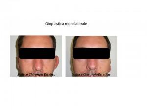 Otoplastica monolaterale